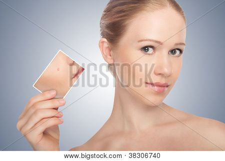Concept Skincare . Skin Of Beauty Young Woman Before And After The Procedure