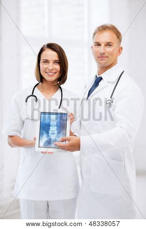 healthcare, medical and radiology - two doctors showing x-ray on tablet pc