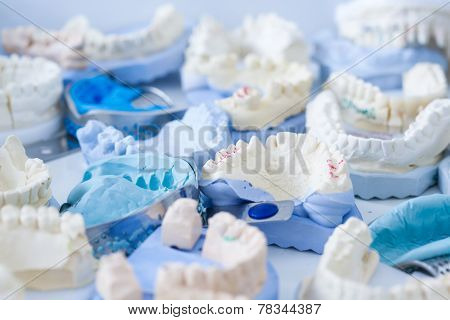 Dental Plaster Moulds And Imprints
