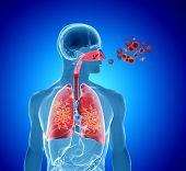 picture of influenza  - 3d rendering illustration of pollen virus or influenza infection - JPG