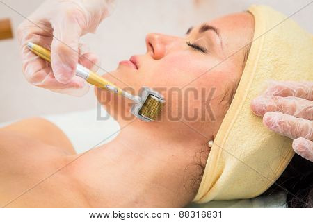Medical cosmetic procedure. Mikronidling