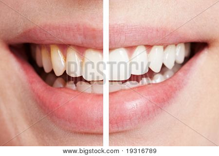 Comparison Of Teeth Before And After Bleaching
