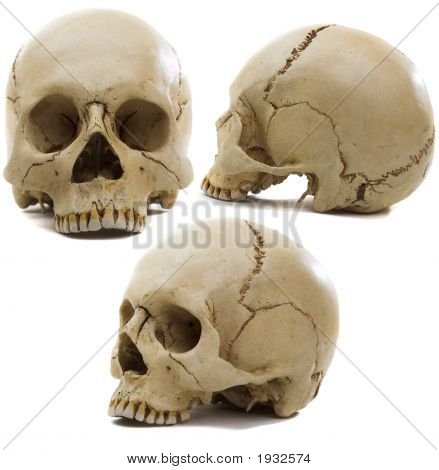 Craniums
