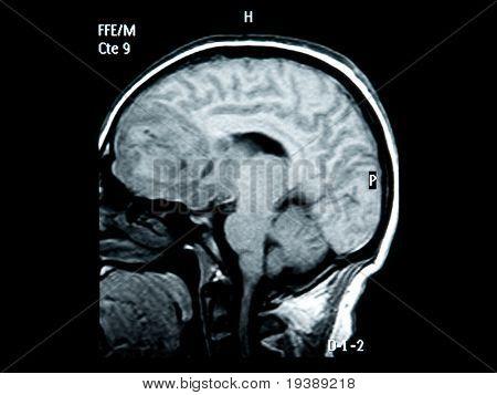 brain mri scan image for medical diagnosis