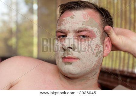 Man Has Peeling Face