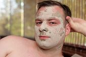 Man Has Peeling Face