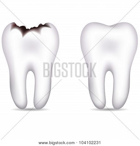 Tooth With Caries And Healthy Tooth