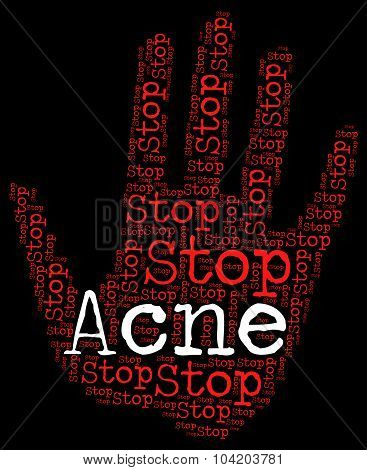 Stop Acne Shows Warning Sign And Blackheads
