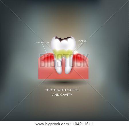 Dental Caries And Cavity