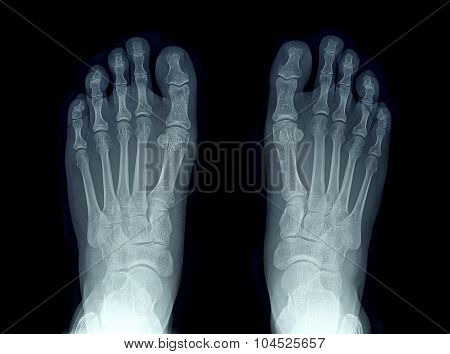 X-ray Image Of Two Feet