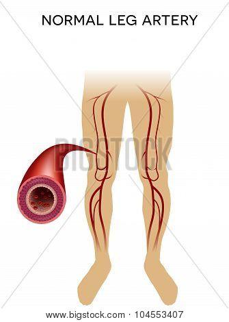 Healthy Leg Artery