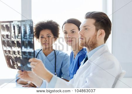 radiology, surgery, health care, people and medicine concept - group of doctors and nurses looking to and discussing x-ray image of spine at hospital