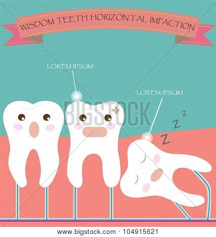 Wisdom Teeth Horizontal Impaction