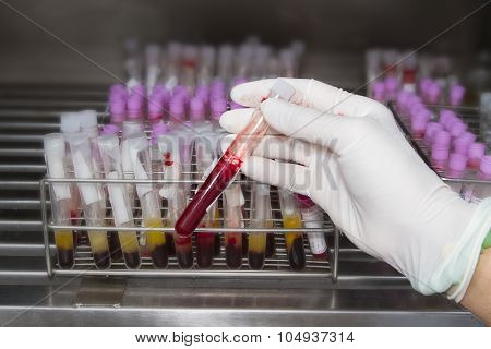Lab Technician Holding Blood Tube Test In Blood Bank Background Blood Samples Other Patients