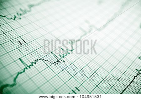 Close up of an electrocardiogram in paper form.