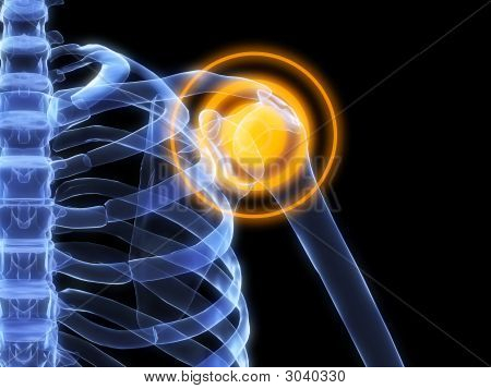 Inflamación del hombro
