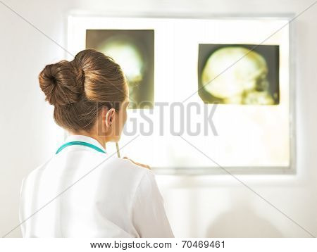 Doctor Woman Looking On Fluorography. Rear View