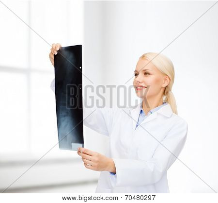 healthcare, medicine and radiology concept - smiling female doctor looking at x-ray over white room background