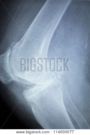 Knee Joint Meniscus X-ray Test Scan