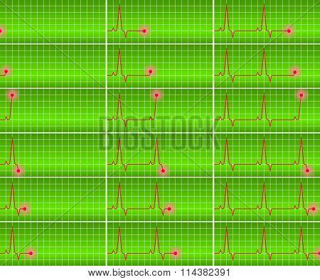 Vector Set Cardiogram