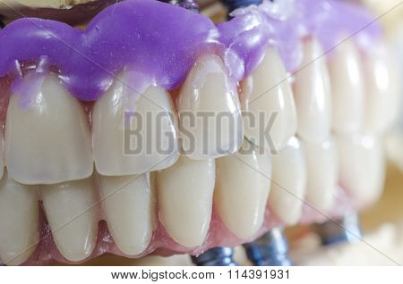 Dental Prosthesis Porcelain Teeth.