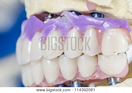Dental Prosthesis Porcelain Teeth.