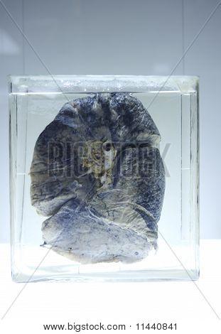 Damaged Lung