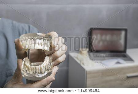 Showing a dentures model.