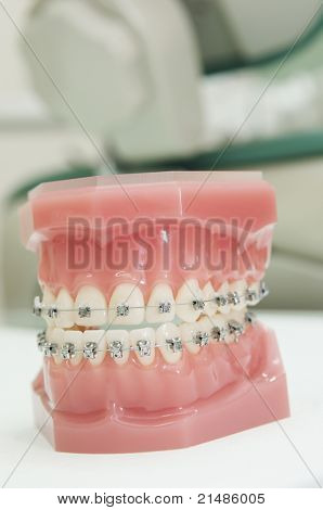 dental upper and lower jaw bracket braces model in clinic