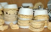 foto of dental impression  - photo of dental impressions - JPG