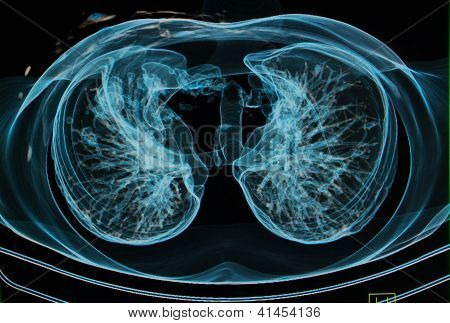 Chest X-rays Under 3D Image ,lungs 3D Sagital Plane Image