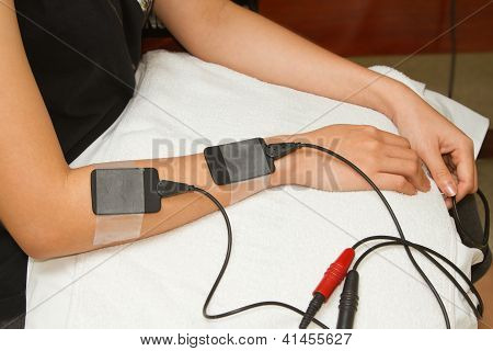 Electrical Stimulation Forearm ,physical Therapist Helping Woman With Electrical Stimulator For Incr