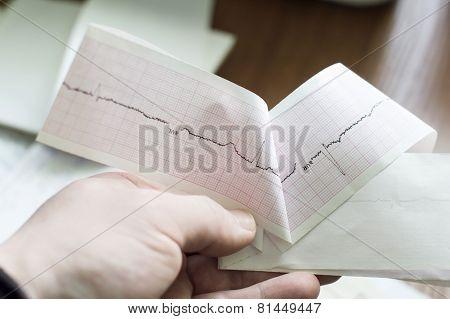 Ecg Of The Patient In The Doctor's Hands