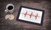pic of electrocardiogram  - Electrocardiogram on a tablet  - JPG