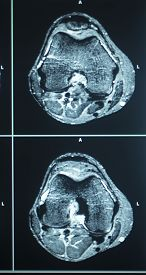 picture of magnetic resonance imaging  - MRI magentic resonance imaging nuclear scanning scan test results knee meniscus injury photo.