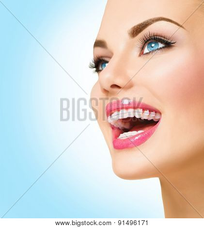 Braces. Beautiful Woman smile close up. Healthy Smile. Closeup Ceramic Braces on Teeth. Beautiful Female Smile with Braces. Orthodontic Treatment. Dental care Concept. Beautiful Lips and Teeth