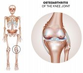 stock photo of knee  - Arthritis of the knee joint damaged joint cartilage and osteophytes - JPG