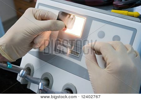 doctor observing dental x-ray picture