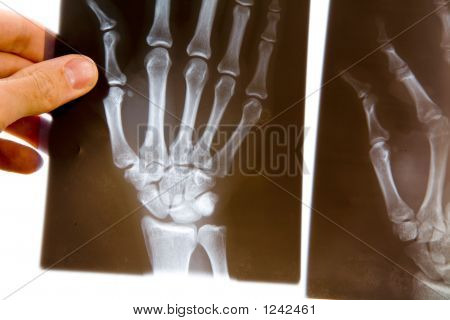 Doctor With X-Ray Of Hand