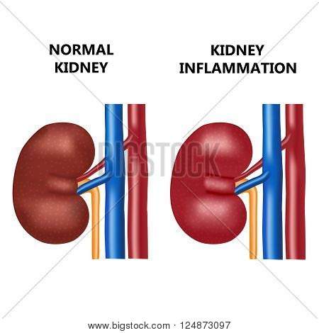 Healthy kidney and kidney infection with the virus.