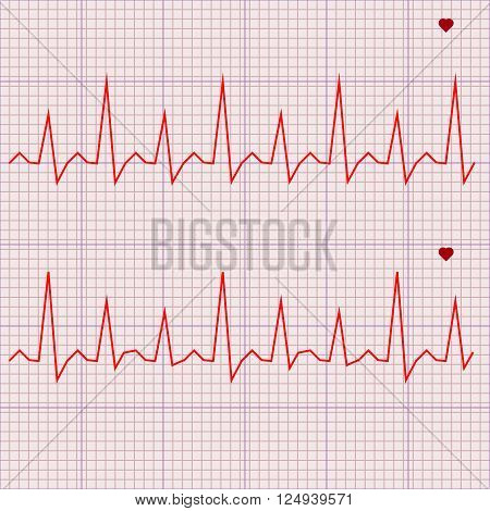 Vector illustration set Heart beats cardiogram 3