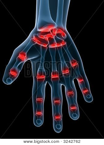 schmerzhafte hand