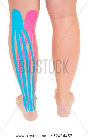 Patients leg with applied pink and blue kinesio tape on white background