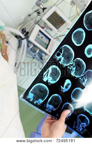 Diagnosis Near The Bedside. Doctor Holding A Tomogram Of The Patient In The Icu.