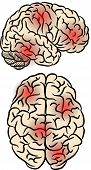 picture of pressure point  - Human brain silhouette with pain points - JPG