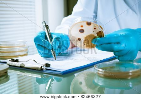 Germs growing on an agar plate in laboratory