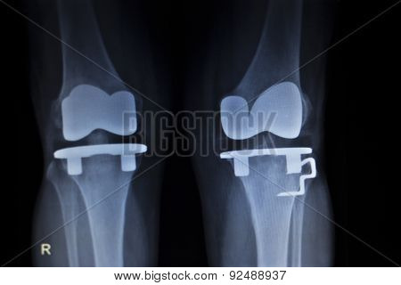 X-ray Orthopedics Scan Of Knee Meniscus Implant Prosthetics