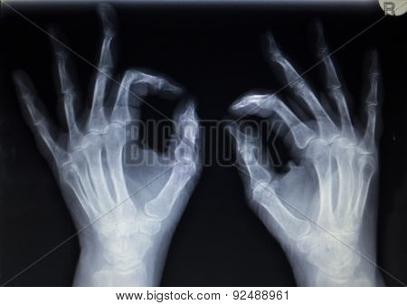 X-ray Orthopedics Traumatology Scan Of Hand Finger Injury
