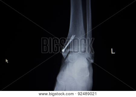 X-ray Orthopedics Scan Of Painful Ankle Foot Injury