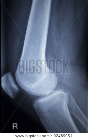 X-ray Orthopedics Scan Of Painful Knee Meniscus Leg Injury